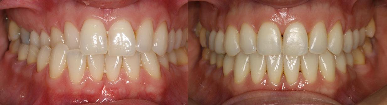 Kryssbitt tannregulering