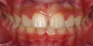 Tyholmen Tannlegesenter, tannregulering