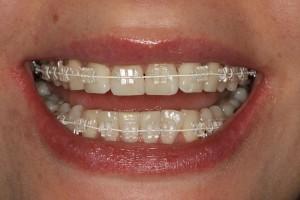 Tyholmen Tannlegesenter, usynlig tannregulering