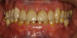 Tyholmen Tannlegesenter, tannregulering voksne
