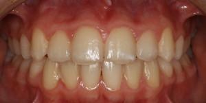 Tyholmen Tannlegesenter, tannregulering barn