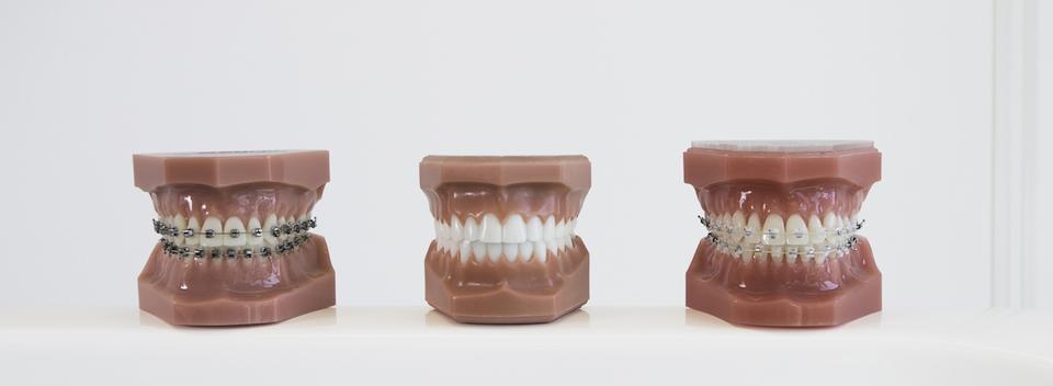 Tyholmen Tannlegesenter. Usynlig tannregulering, brackets, incognito, plastskinner